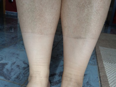 Beine konnten am Abend mal so aussehen.
